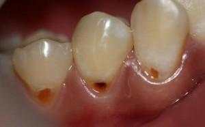 Nguyên nhân gây sâu răng là gì ?