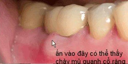 Viêm nha chu nặng làm răng lung lay