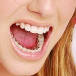Nha khoa niềng răng mặt lưỡi uy tín nhất