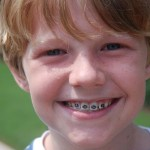 Những điều cần lưu ý khi niềng răng cho trẻ em