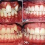 Những tác dụng quan trọng của niềng răng