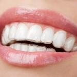 Niềng răng chỉnh nha không mắc cài Invisalign