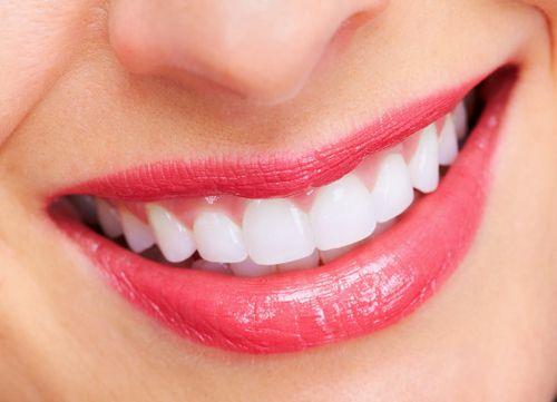 Niềng răng có tác dụng gì ?