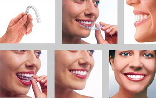 Niềng răng hô hàm dưới công nghệ mới