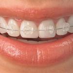 Niềng răng hô hàm trên tại nha khoa Toàn Sứ