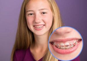 Niềng răng hô mất thời gian bao lâu ?