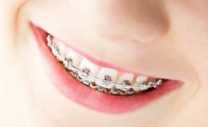 Niềng răng hô móm lệch lạc ở đâu tốt ?