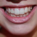 Niềng răng hô móm tại nha khoa Toàn Sứ