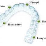 Niềng răng Invisalign có tốt không ?