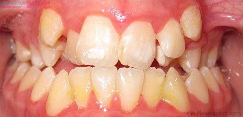 Niềng răng khểnh giá bao nhiêu tiền ?