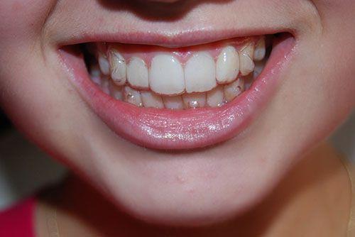 Niềng răng không mắc cài giá bao nhiêu tiền ?