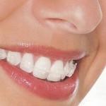 Niềng răng mắc cài sứ giá bao nhiêu tiền ?
