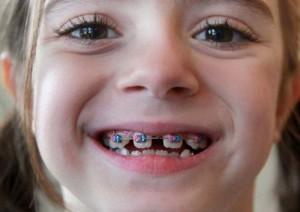 Niềng răng thẩm mỹ cho trẻ