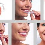 Niềng răng trong suốt có tốt không ?