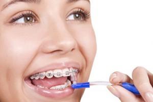 Hướng dẫn chăm sóc răng miệng sau khi niềng răng