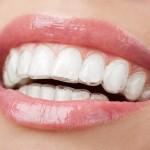 Khi răng bị hô nên niềng răng hay bọc răng sứ ?