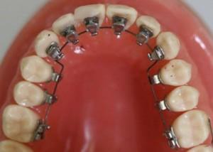 Niềng răng mặt trong một cách chỉnh nha bí mật