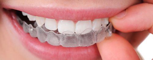 Niềng răng tháo lắp có mang lại hiệu quả cao không?