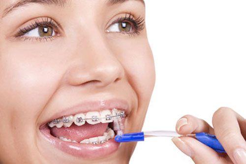Phải làm gì khi niềng răng ?
