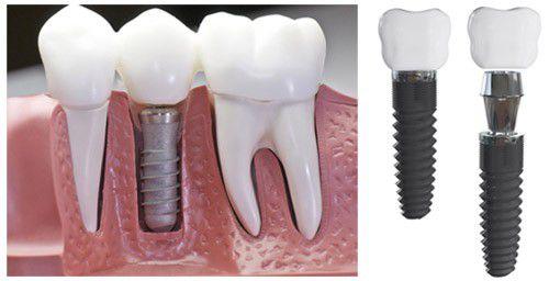 Dental Implant Việt Nam