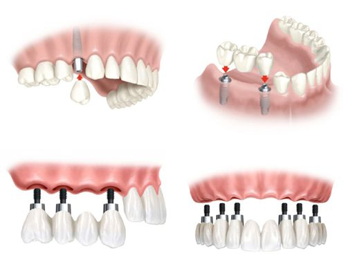 Cấy ghép răng Implant mang lại những lợi ích gì?