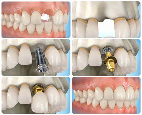 Chất lượng và độ tin cậy trong cấy ghép Implant