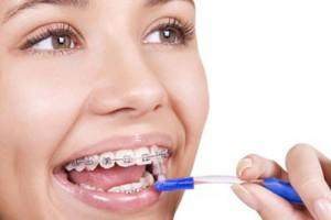 Đánh răng đúng cách khi niềng răng
