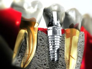 Lời khuyên sau khi cắm ghép Implant
