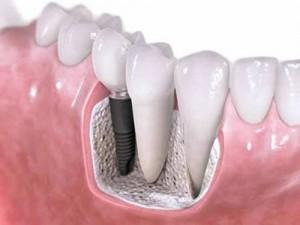 Răng implant khỏe hơn răng thật