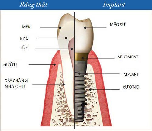 Vì sao cần Implant?