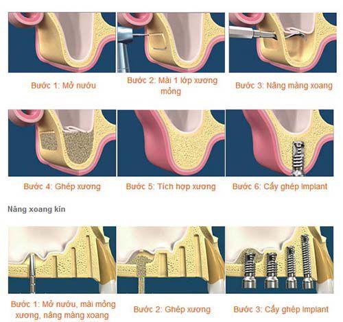 Các kỹ thuật cấy ghép xương trong implant nha khoa