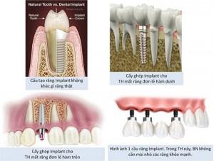 Chảy máu kéo dài sau trồng răng implant