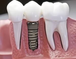 Những điều cần tránh sau khi cấy ghép Implant