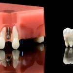 Phương pháp trồng răng sứ hiện đại và hiệu quả cao