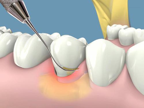 Viêm quanh Implant là gì?