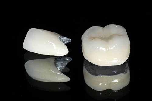 Bọc răng sứ 2 răng cửa hết bao nhiêu tiền?