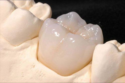 Bọc răng sứ Cercon và những điều cần biết