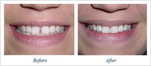 Bọc răng sứ cho răng bị thưa có NÊN hay KHÔNG NÊN???