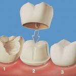 Bọc răng sứ có đắt không?