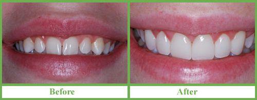 Bọc răng sứ có được lâu không?