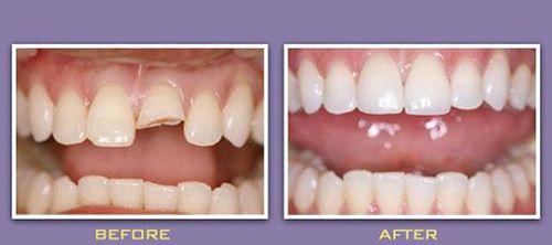 Bọc răng sứ giá bao nhiêu đảm bảo BỀN ĐẸP TRẮNG SÁNG