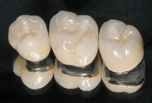 Bọc răng sứ giá rẻ nhất là bao nhiêu tiền?
