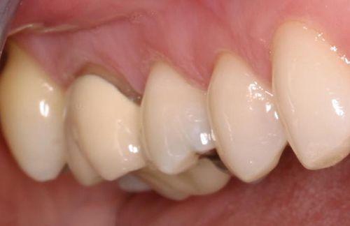 Bọc răng sứ kim loại có tốt không?