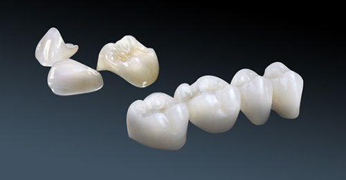 Bọc răng sứ loại nào tốt nhất?