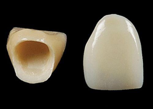 Bọc răng sứ vĩnh viễn bao nhiêu tiền một răng?