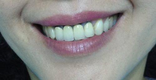 Các loại răng sứ phổ biến hiện nay