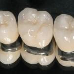 Các loại răng sứ thẩm mỹ hiện nay
