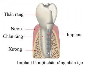 Cấu tạo của răng Implant nha khoa