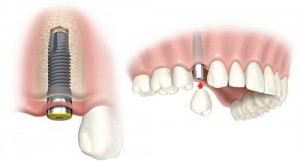 Cấy ghép implant ngay sau khi ghép xương được không?