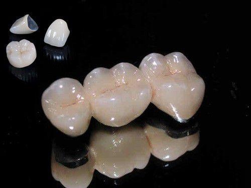 Có nên làm răng sứ Titan cho răng sâu không?